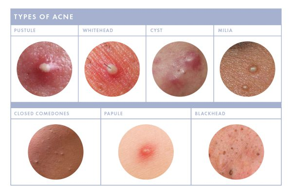 Whiteheads pustules papules