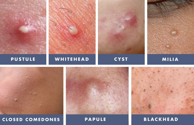 How to Treat Whiteheads, Blackheads, Pustules, Papules ...
