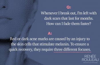 How Can I Fade My Acne Scars and Dark Marks?