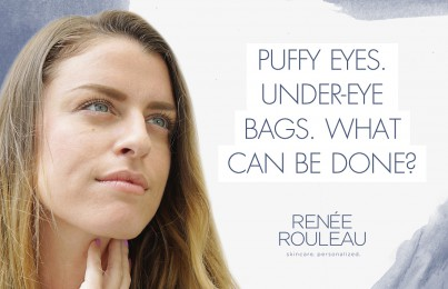 Why Your Eyes Are Puffy—And What You Can Do About It
