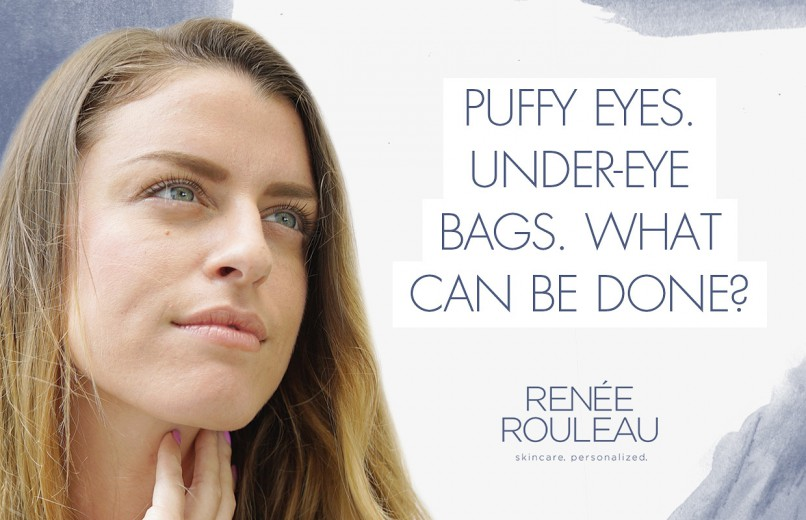 b288645bddc7 Puffy Eyes And Under Eye Bags  Causes and Treatment