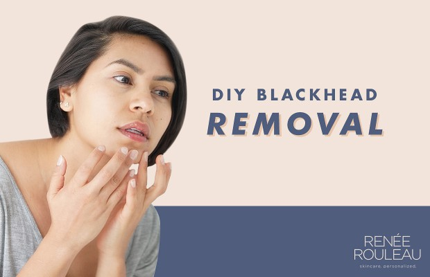 remove blackheads from face