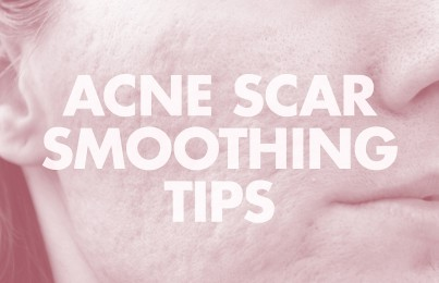 treating indented acne scars