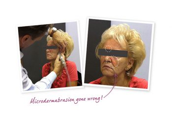 Microdermabrasion Gone Wrong!