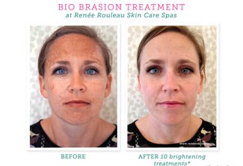 Bio Brasion Treatment for Clearer, Brighter, Smoother Skin