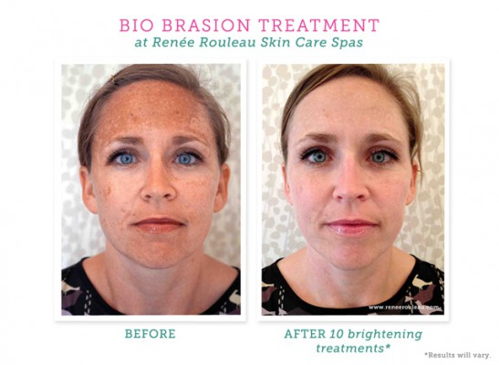 What Is The Bio Brasion Treatment