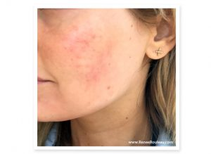 Acne Cosmetica: Is This The Cause Of Your Bumps And Breakouts?