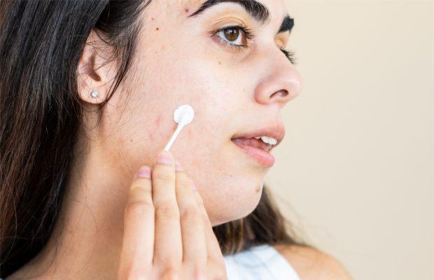 Benefits of Acne