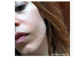 This Client FINALLY Found Out The (Strange!) Cause Of Her Breakouts