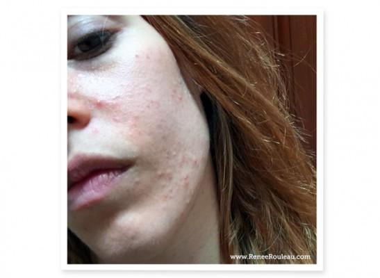 sudden acne eruptions