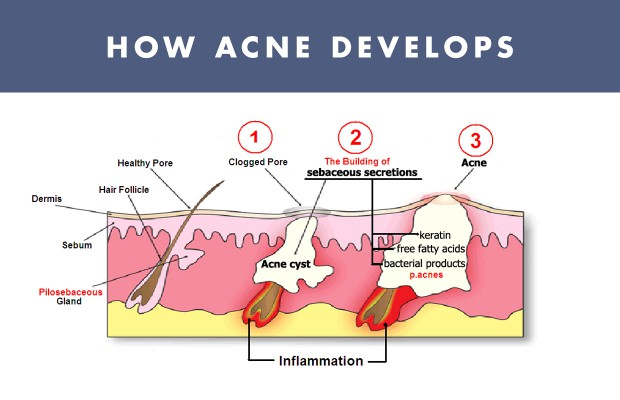 Cystic Acne Diagram Product Wiring Diagrams