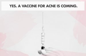 There's A New Vaccine For Acne… But Will It Work?