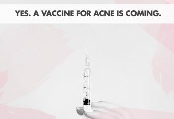 There's A New Vaccine For Acne... But Will It Work?