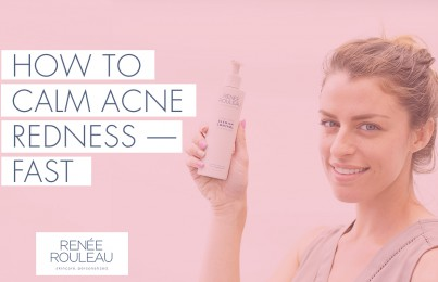 Do You Have Redness From Acne? Use These Five Ingredients To Calm Your Skin