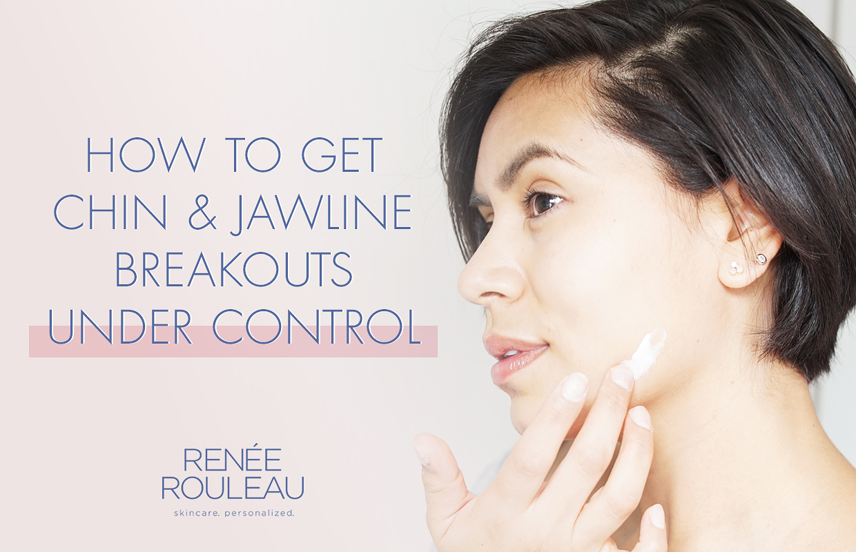 Prevent Chin Acne Pimples On Your Chin With These Tips Renee Rouleau