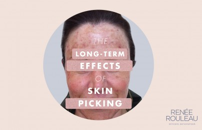 Picking At Your Skin Causes Damage And This Photo Proves It