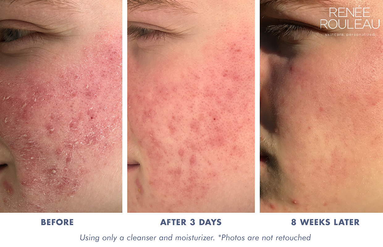 How To Get Rid Of Dry Skin Caused By Harsh Acne Treatments Renee