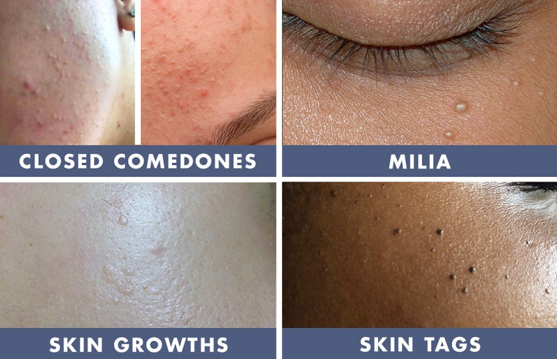 Bumps on the Skin — Age Bumps, Skin Growths and Clogged Pores