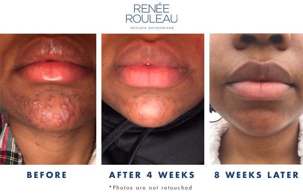 Before and After Chin Acne