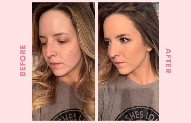 Cover Acne Scars with Makeup