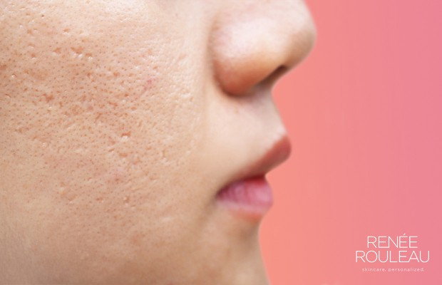 Close-up of woman's skin showing indented, depressed acne scars