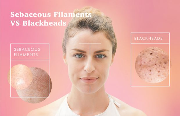 Woman with oily t zone blackheads and sebaceous filaments