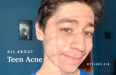 Young teenager with acne smiling