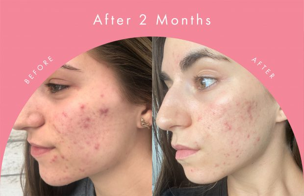 before and after of young woman's acne routine