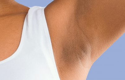 How to Get Your Armpits Smooth and Summer-Ready